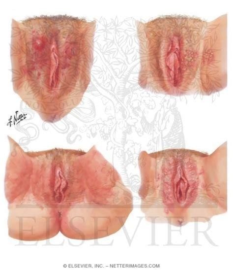 Vulvar diseases in primary care the visible lesion is it jpg 475x550