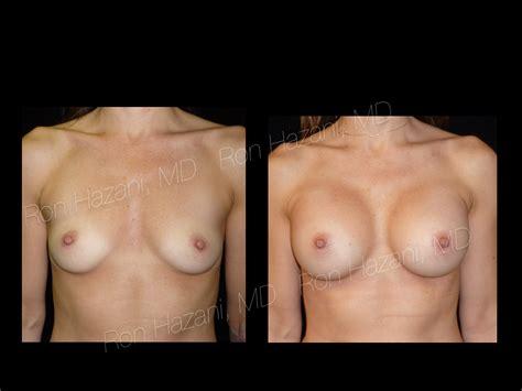 Breast implants videos breast augmentation virginia jpg 1024x768